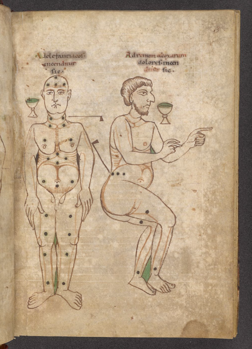 depicting bloodletting points, ca. 1100, England, ink on parchment, 18.5 x 13 cm. Collection of The British Library, London.